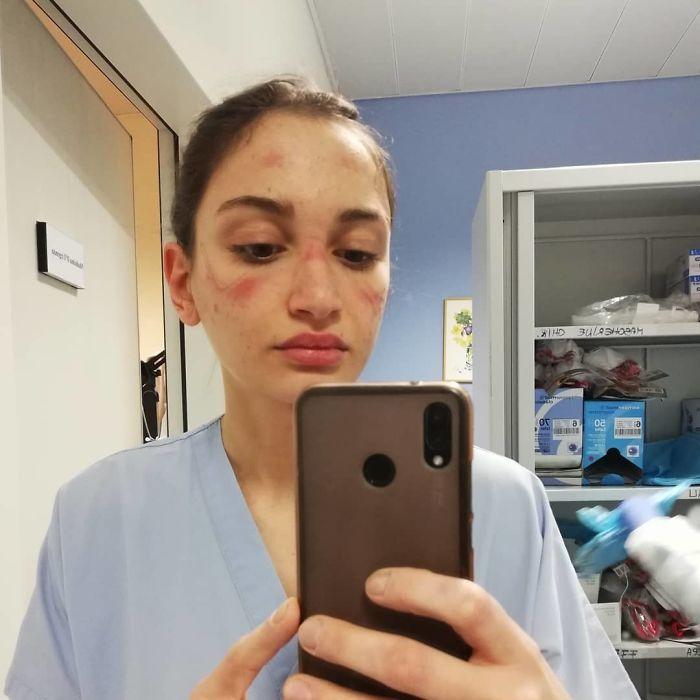 20 fotos emocionantes que mostram o sacrifício dos profissionais de saúde contra o coronavírus 5