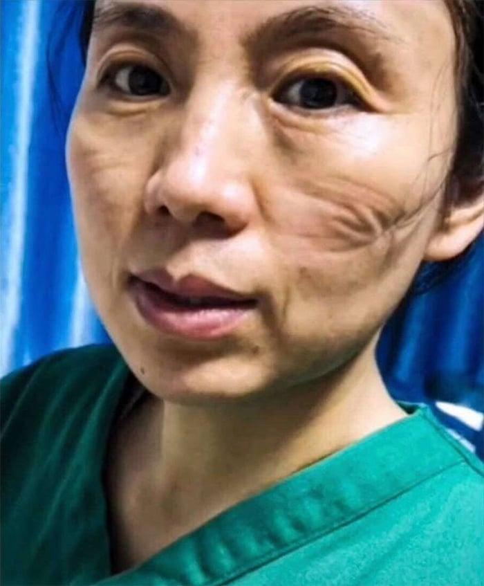 20 fotos emocionantes que mostram o sacrifício dos profissionais de saúde contra o coronavírus 19