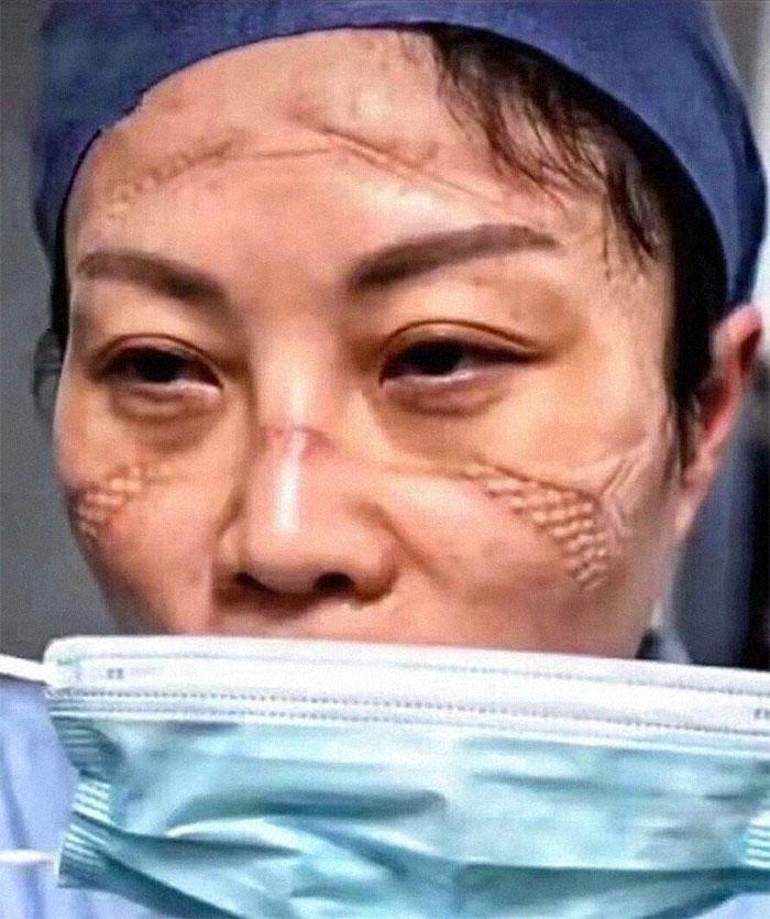 20 fotos emocionantes que mostram o sacrifício dos profissionais de saúde contra o coronavírus 9